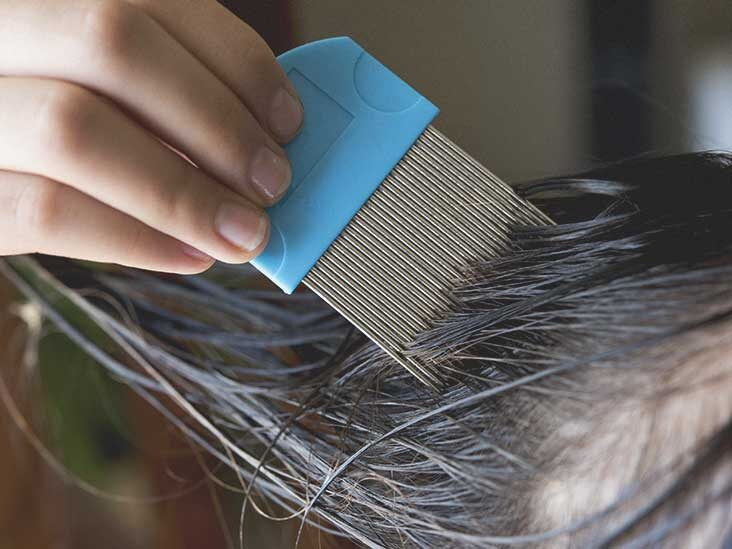 Things to know about lice